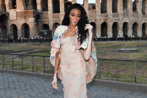 Winnie Harlow attends the Cocktail at Fendi Couture.